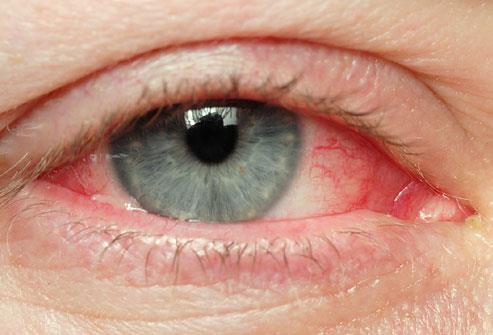 Κόκκινα μάτια