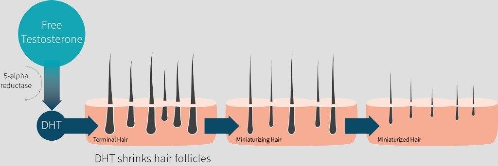 hair loss faq