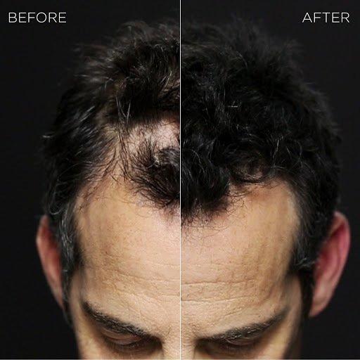 Hair Fiber Spray - How to choose?