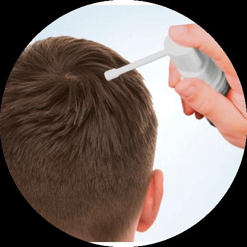 Does Minoxidil work?