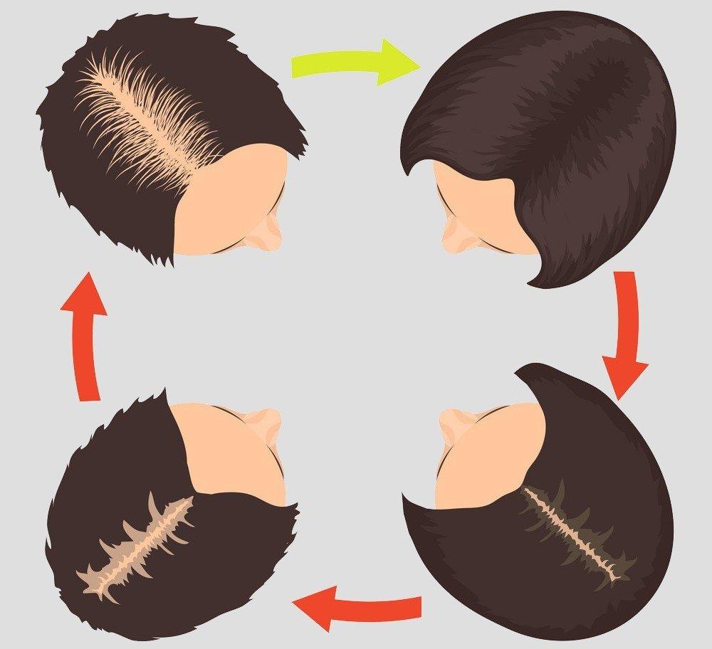 Diffuse alopecia in women