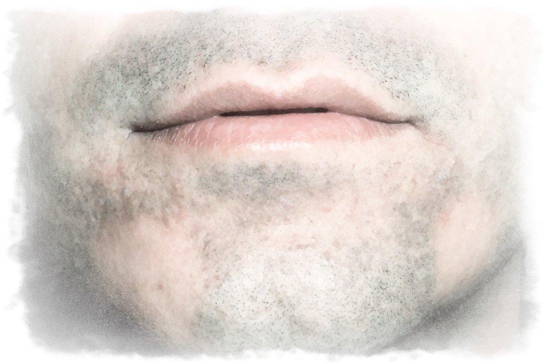 11 reasons why your beard does not grow alopecia areata