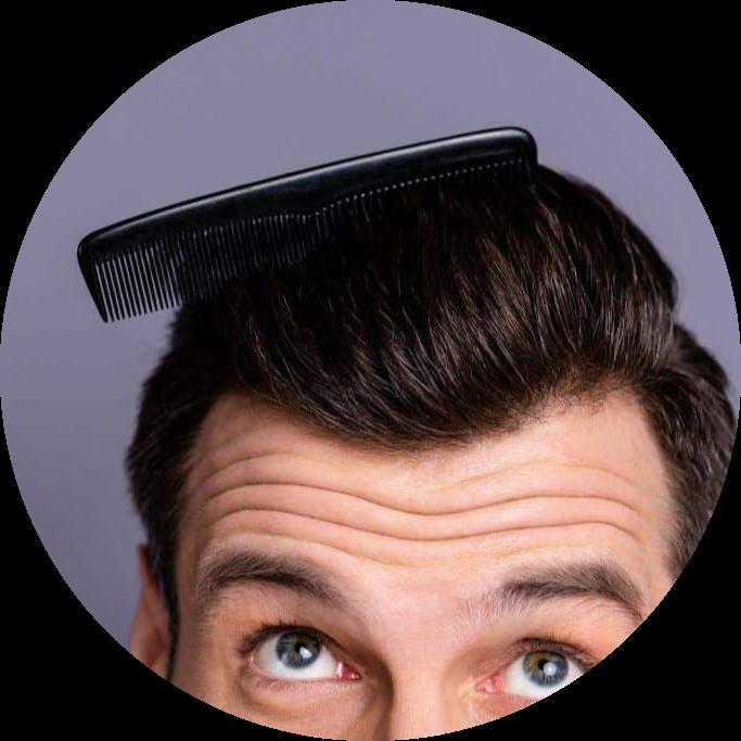 Hair transplant vs. Hair treatment
