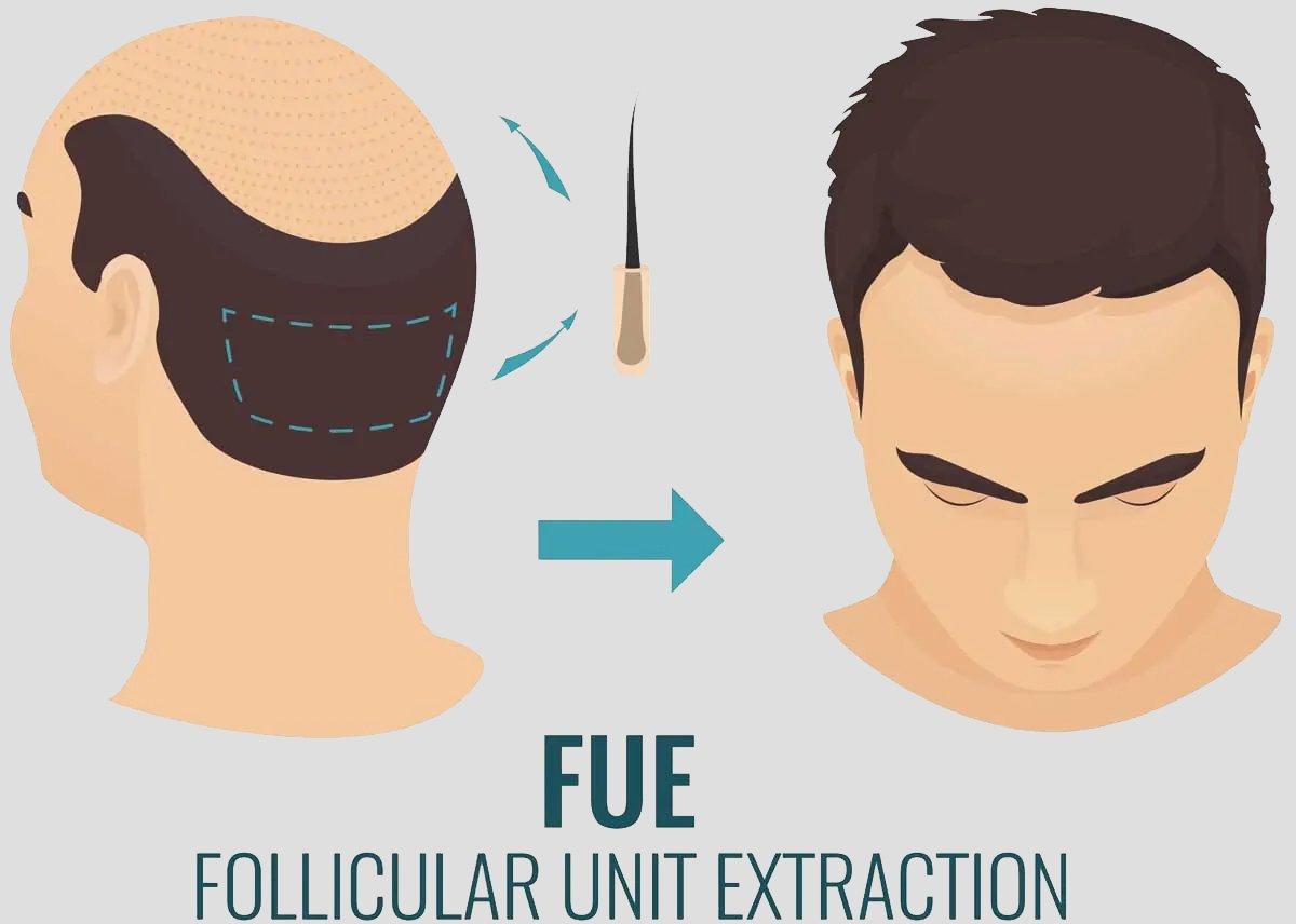 Hair transplant fue follicular unit extraction