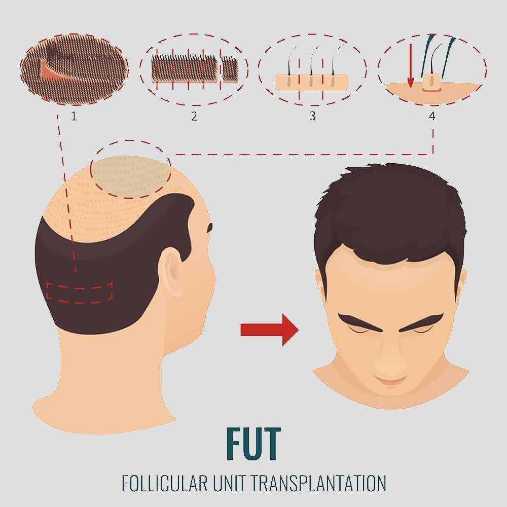 Hair transplant fut follicular unit transplantation