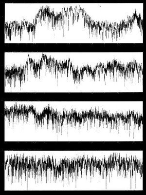 Illustration of the balance in a voice print over 4 BioWaves Sound Therapy Sessions.