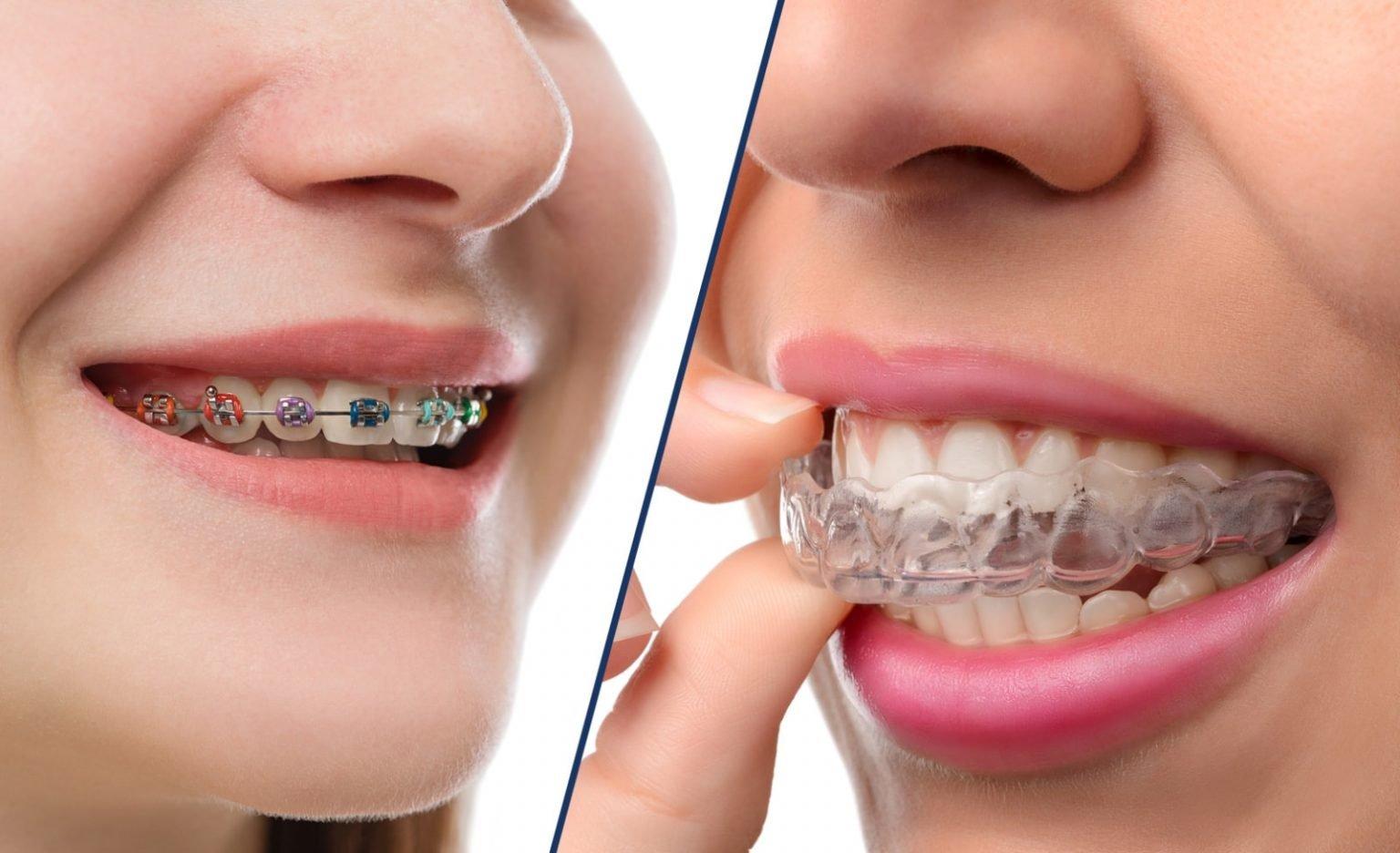 أشكال تقويم الأسنان