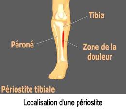Comment soigner une périostite ?
