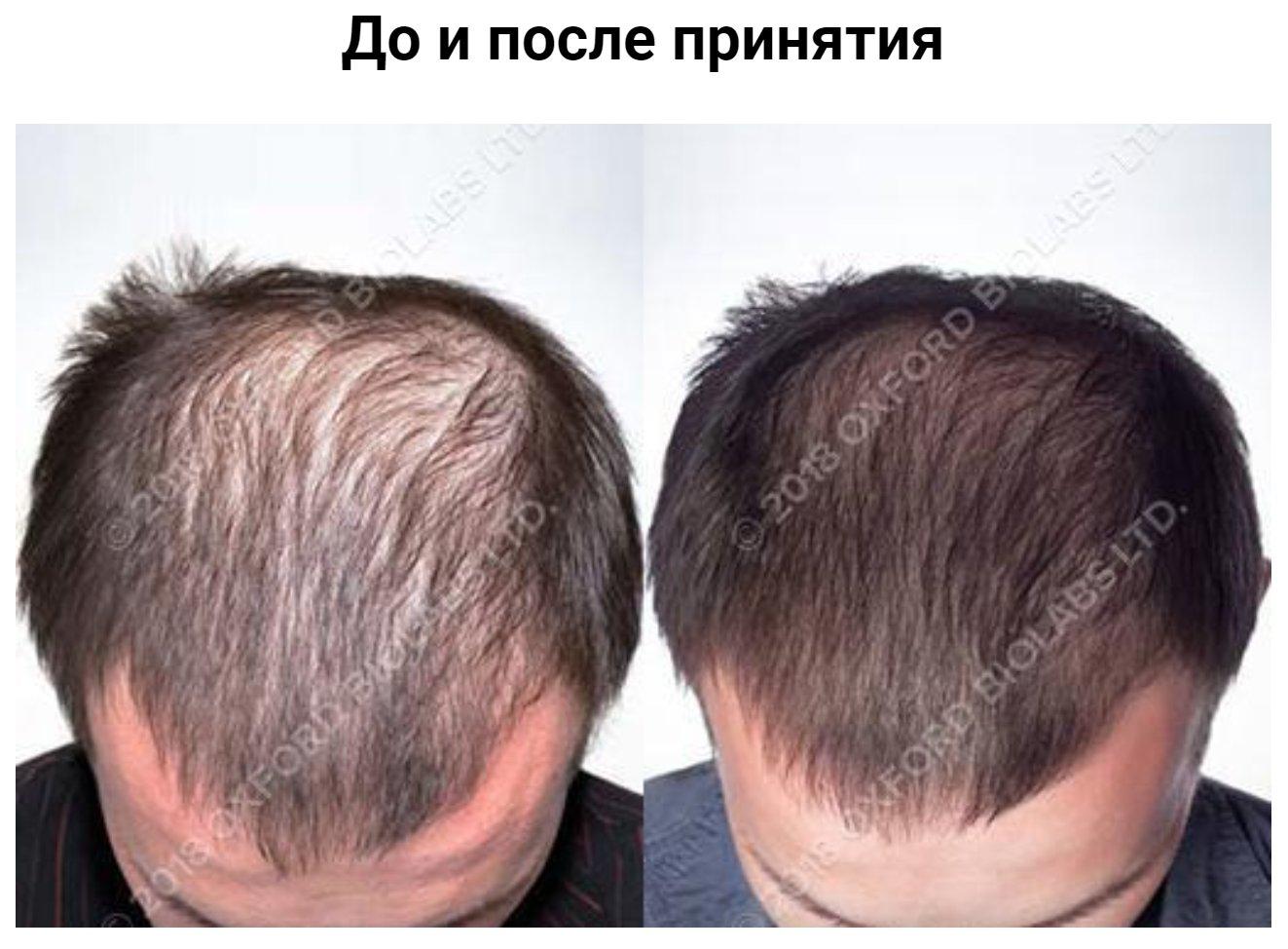 Мужчина, 34 года Норвуд: III - диффузное истончение волос. Лечение: витамины TRX2®. Продолжительность 18 месяцев
