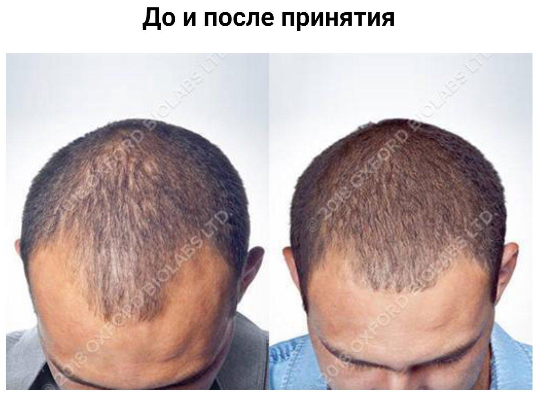 Мужчина, 36 лет Норвуд: III - Залысины и передняя часть. Лечение: витамины TRX2®. 18 месяцев