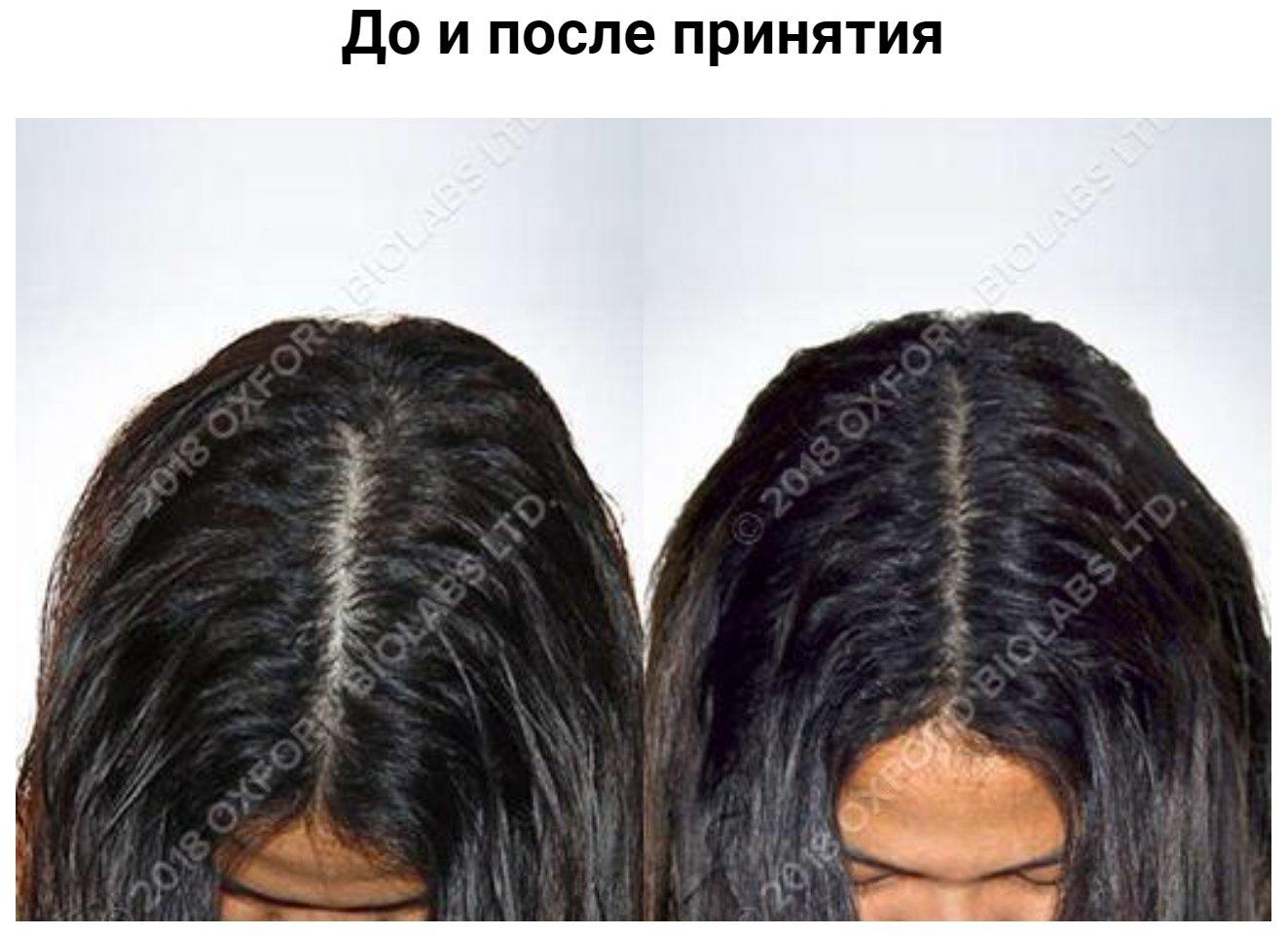 Женщина, 23 года Людвиг: 1 - 3. Выпадение волос у женщины с диффузным истончением. Лечение: витамины TRX2® - 18 месяцев.