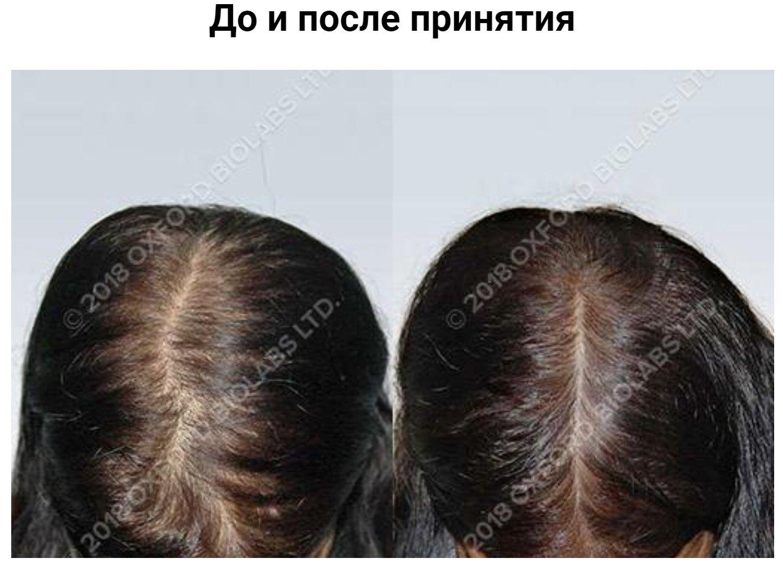 Женщина, 45 лет Людвиг 1-3 - Выпадение волос у женщины после беременности и менопаузы. Лечение: витамины TRX2® - 18 месяцев.